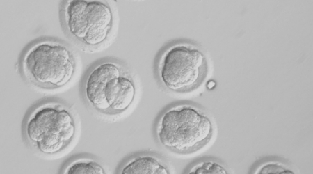 Researchers' embryonic stem-cell advance decried as morally troubling
